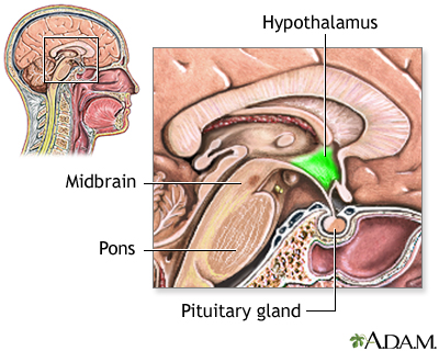 Treatment that changed TBI symptoms  Neuroendocrine complications in    Hypothalamic Dysfunction